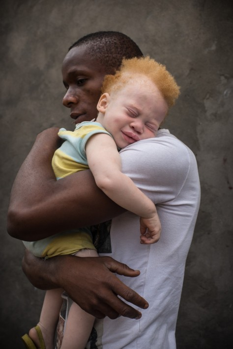 09 Jul 2013, Kinshasa, Democratic Republic of the Congo --- Democratic Republic of Congo (DRC), Kinshasa, black father holding his albino todler (Shango Okaka) in his smiling albino toddler in his arms against a grey wall, Kinshasa, (MR) --- Image by © Patricia Willocq/Art in All of Us/Corbis