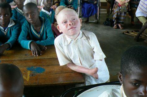 albinos  (2)